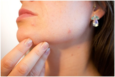 reverse effects, effects on blood vessels, cons of pore strips, benefits of pore strips